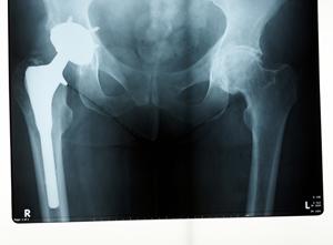 Abg II modular neck hip system recall